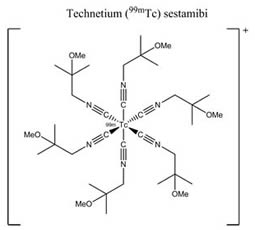 Technetium (99mTc) Sestamibi