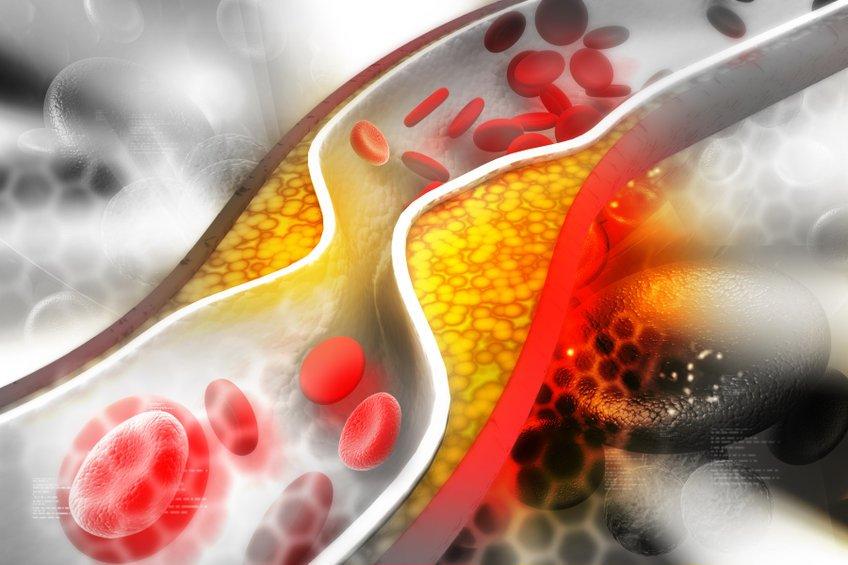 PCSK9 inhibitors pharmacology